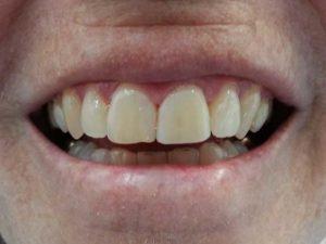 Heber City Dentist TimberRidge Dental After