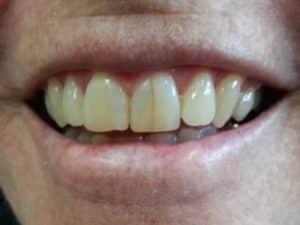 Heber City Dentist TimberRidge Dental Before