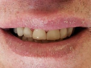 Before & After Photos For Teeth Whitening in Heber City